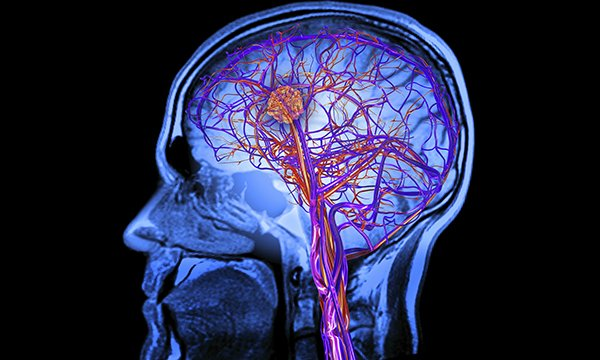Computer artwork depicts an MRI brain scan revealing the effects of a stroke, showing a blood clot. Upper limb impairment, which occurs in a majority of strokes and requires rehabilitation, is reviewed in three research papers.