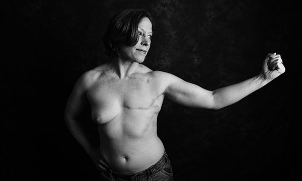 Picture shows a woman naked from the waist up, with a scar where one breast has been removed. People with cancer are allowing pictures of themselves displaying the scars from their treatment to be used in the fundraising Defiance project.